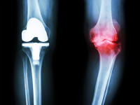 Degenerative Joint Disease in Knee