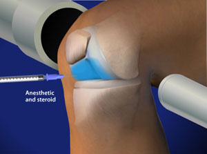 Steroid injection knee pain axiolabs cyx3 reviews