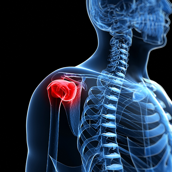 Dislocated Shoulder Its Potential Complications And Treatments