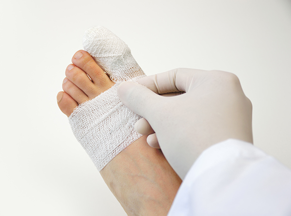 How to treat a broken small toe