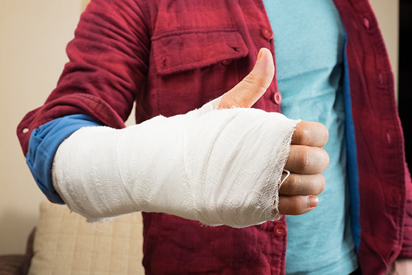 Thumbs Up sign from person with a casted hand