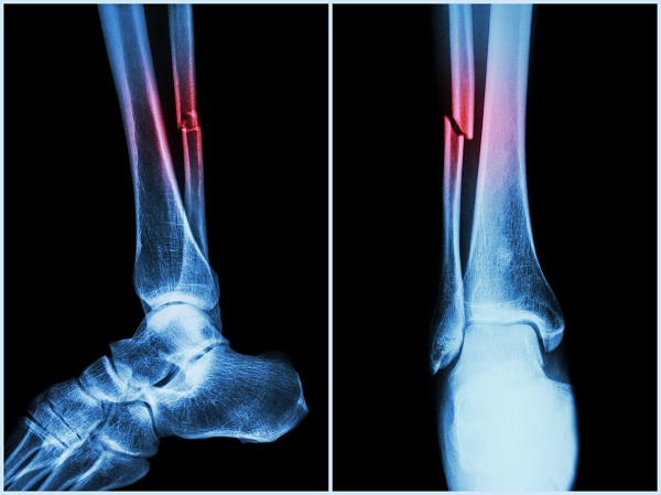 Image result for what does a broken bone look like on an x ray